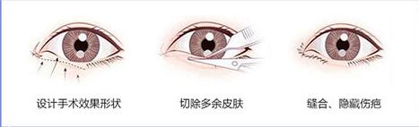 双眼皮手术治疗方式